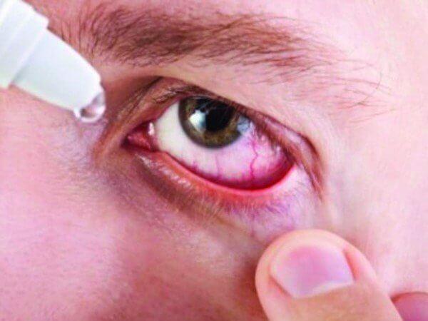 Cách massage bấm huyệt khi bị đau mắt