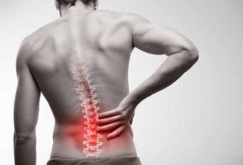 Bệnh đau nhức thắt lưng, nguyên nhân và cách điều trị hiệu quả